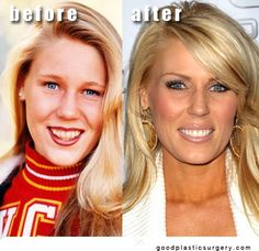 "Rossi of ""The Real Housewives of Orange City"" (Bravo-TV)Gretchen Rossi of ""The Real Housewives of Orange City"" (Bravo-TV) Girls Be Like, Guys And Girls, Botched Plastic Surgery, Gretchen Rossi, Chin Implant, Celebrities Before And After, Bravo Tv, Stars Then And Now"