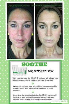You don't have to live with #rosacea!  Rodan + Fields Soothe is the best product to soothe sensitive skin of all types! #rodanandfields.