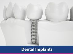 What are Dental Implants? Webdentist.in  Dental implants are used as an alternative to dentures when considering replacing an extracted tooth. Implants have several benefits over dentures though they do have their limitations as well. Read on to find out more about your options.