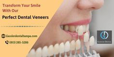 Looking for the perfect dental veneers? At Gassler Dental, we improve the aesthetics of your smile which is designed to cover the front surface of teeth to improve your appearance. For more information, call: or visit: gasslerdentaltamp… Dental Veneers, Porcelain Veneers, Family Dentistry, Best Dentist, Cosmetic Dentistry, Dental Implants, Your Smile, Teeth, Improve Yourself