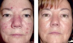 After photo at Day 180 using Osmosis product Restore Topical with one professional Facial Infusion treatment at the mid-point of transformation.