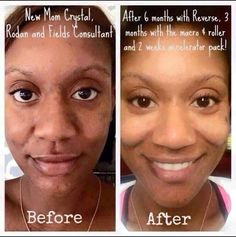 Rodan + Fields Reverse Regimen Truly is a game changer! Ask me how to get this glow! DKingsley2017@gmail.com