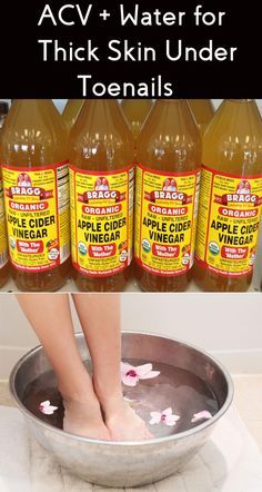 How to Get Rid Thick Skin Under Toenails & Fingernails - 5 DIY Recipes Thick Toenails, Toenail Fungus Treatment, How To Grow Natural Hair, Hair Remedies For Growth, Thick Skin, Diy Skin Care, Feet Care, Toe Nails, The Cure
