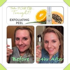 Amazing results from It Works Exfoliating Peel!! #natural #exfoliating #peel #skin #skincare #acne #clear #scar #smooth #remedy