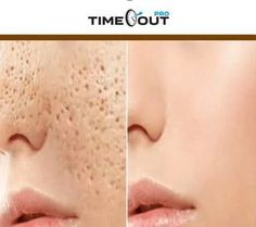 3 DAYS AND ALL OPEN PORES WILL DISAPPEAR FROM YOUR SKIN FOREVER – Sunny World Magazine