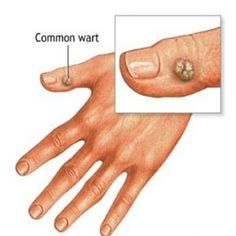 Natural Treatments & Cure For Wart » Home Remedies For Wart http://www.wartalooza.com/treatments/salicylic-acid-treatment-for-warts