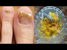 Skin Treatments, Health Tips, The Creator, Remedies, Food And Drink, Youtube, Magick, Diet, Do Your Thing