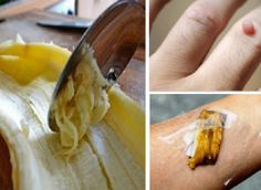 Mai gettare la buccia di banana... I suoi benefici sono a dir poco strepitosi! SCOPRILI