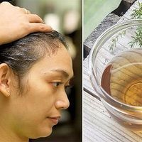 One Simple Shampoo Which Will Make Your Hair Grow Like Crazy and Everyone Will Be Jealous Of Your Shine and Volume Natural Hair Growth Remedies, Hair Loss Remedies, Stop Hair Loss, Prevent Hair Loss, Simple Shampoo, Infection Fongique, Anti Hair Loss Shampoo, Best Hair Mask, White Hair