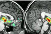Antipsychotics increase risk of death in people with Parkinson's disease psychosis