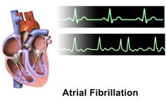 Increasing cases of AF among the global population coupled with rising importance of catheter ablation procedures is expected to fuel growth of the atrial fibrillation market over the forecast period (2016–2024).