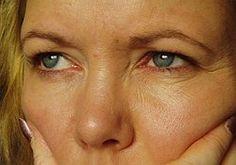 ridurile-tratamente naturiste(wrinkles-natural treatments) Pe masura ce inaintezi in varsta,PIELEA din jurul ochilor devine din ce in ce mai subtire, fapt ce favorizeaza aparitia inesteticelor ridu...