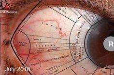 Esclerologia - Rory Jean Jacques - SA Naturaleza Doc- 0827281658