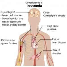 Best Home Remedies For Insomnia