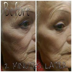 Where Can I Buy Jeunesse Instantly Ageless Eye Cream ? Come to Our Official Website and You Could Buy Best Jeunesse Instantly Ageless Anti Aging Eye Cream, Beauty Tips, Beauty Hacks, Under Eye Bags, Dark Spots Under Eyes, 10 Years, Brazil, Ageing, Youth, Beauty Tricks