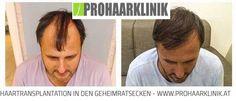 Haartransplantation Bellinzona, Haarverpflanzung Tessin