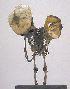 Skeleton of fetus ficefalico