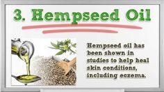 Natural Remedies for Eczema - Natural Remedies for Eczema on Face - Natural Remedies in Ears
