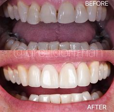 """Dr. Bill Cosmetic Dentist on Instagram: """"TREATMENT:Only 4 PorcelainVeneers & Zoom whitening transformed this simile in JUST 2 DAYS!!!!!!!!' 🎯 Purpose: Improves function and…"""" Zoom Whitening, Porcelain Veneers, Perfect Smile, Simile, Dental, Purpose, Cosmetics, Instagram, Teeth"""