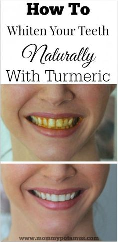 Whiten your teeth with this spice from your kitchen! Turmeric is a surprisingly effective teeth whitener. Here's how to whiten your teeth naturally, without chemicals.