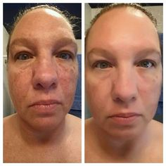 Amasing results! After one month, the use of serum Luminesce !