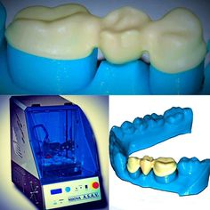 Something we liked from Instagram! #StratusDental3D la #stampante3d per il settore #dentale a tecnologia FFF! www.nuova-asav.it www.3dline.it  #Dental #dental3dprinting #dental3d #dental3dprinter #3dprinter #Stampa3D #ortodonzia #dentista #odontoiatria #odontoiatra #laboratoriodental #laboratorioodontotecnico #orthodontics #3dprinted #3dprinting #medical #medicale by 3dline_stampanti3d check us out: http://bit.ly/1KyLetq