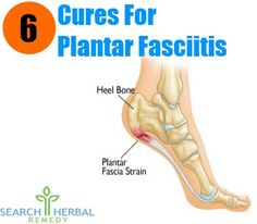 6 Cures For Plantar Fasciitis
