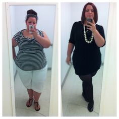 A picture of me a month out of surgery and 7 months post RNY gastric bypass