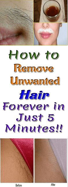 How to Remove Unwanted Hair Forever in Just 5 Minutes #beauty #skin #unwantedhairs #homeremedies #diy #remedies #hairremoval