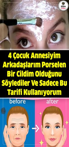 Siyah noktalara karşı daha hassas cilt tipleri yağlı ve karma ciltlerdir. Beauty Care, Beauty Hacks, Hair Beauty, Porcelain Skin, Gel Eyeliner, Natural Health Remedies, Homemade Skin Care, Healthy Beauty, Facial Care