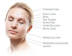 Natural acupressure facelift: Facial workouts are producing ordinary women and men lovely looks and a tight, glowing face skin. The premium face toning route towards a non-invasive Japanese Facelift. The rewards of facial yoga exercises are eternal Anti Wrinkle Injections, Botox Injections, Under Eye Lines, Botox Injection Sites, Face Lift Exercises, Facelift Without Surgery, Sagging Face, Face Tone, Botox Cosmetic