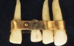 Etruschi esperti ed abilissimi dentisti Si sa che la civiltà etrusca fu molto avanzata ed anche in ambito odontoiatrico non fu da meno. Le sepolture ci hanno permesso di venire a conoscenza delle modernissime protesi dentarie e dei ponti c #etruschi #dentisti #protesidentarie