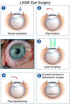 LASIK surgery (Laser-assisted in-situ keratomileusis) eye surgery to treat eye disorders with the use of laser technology. The anomalies of the eyes can be Laser Vision Correction, Laser Eye Surgery Cost, Lasik Eye Surgery, Eye Anatomy, Eye Facts, Coaching, Eye Center, Types Of Eyes, Health