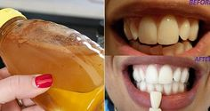 GARGLE WITH JUST ONE INGREDIENT AND SEE WHAT WILL HAPPEN TO YOUR TEETH