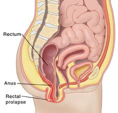 prolapse rectum Treatment