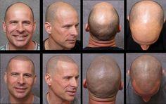 tricopigmentación, mira que efecto tan natural, puede ser la solución a la alopecia