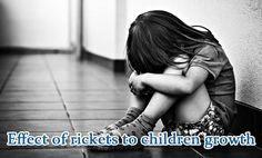 Effect of rickets to children growth - There are two sides of an effect of rickets, physically and mentally. Both of them shouldn't neglect by parents.