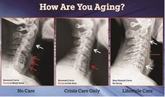 These x-ray images tell a very important tale about aging that every person should know.The three pictures represent neck x-rays of three different individuals who are in their mid- fiftie...