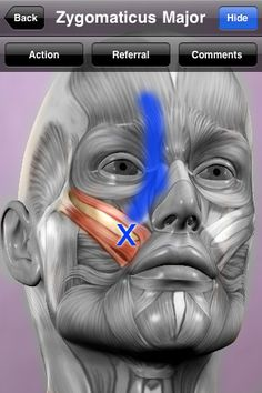 Trigger Point App For iPhone