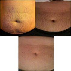 Nerium Firm. Amazing results in 30 days. www.nelsonandjackie.nerium.con