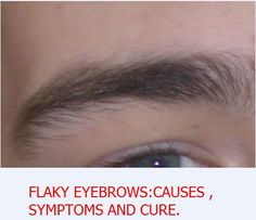 Flaky eyebrows: causes,symptoms and remedies . - Improving your life health and…