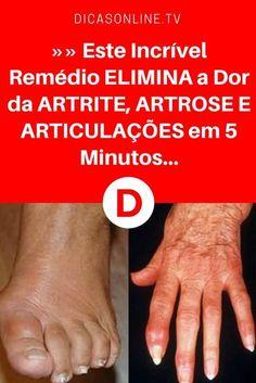 Artrite remedio | »» Este Incrível Remédio ELIMINA a Dor da ARTRITE, ARTROSE E ARTICULAÇÕES em 5 Minutos... | Repasse para quem precisa!!