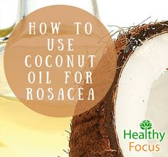 Good skin tips coconut oil Coconut oil for Rosacea- kills mites, and fights bacteria which cause rosacea flare ups. Coconut oil also helps healing skin with moisturizers and Vitamin E Coconut Oil Facial, Coconut Oil Moisturizer, Coconut Oil Lotion, Natural Coconut Oil, Coconut Oil For Acne, Coconut Oil Uses, Benefits Of Coconut Oil, Organic Coconut Oil, Homemade Moisturizer