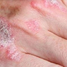 Psoriasis Free - Many history famous figures used Aloe Vera for. - Professors Predicted I Would Die With Psoriasis. But Contrarily to their Prediction, I Cured Psoriasis Easily, Permanently & In Just 3 Days. I'll Show You! Psoriasis Causes, Psoriasis Remedies, Eczema Psoriasis, Eczema Scalp, Arthritis Remedies, Types Of Arthritis, Arthritis Symptoms, Psoriatic Arthritis, Allergies
