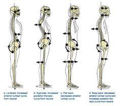 Pelvic Tilt – Cause of back Problems? Posture Fix, Posture Exercises, Bad Posture, Muscle Anatomy, Body Anatomy, Alexander Technique, Pelvic Tilt, Muscle Imbalance, Spine Health
