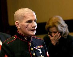 The beautiful face of courage: Lance Cpl. William Kyle Carpenter USMC Carpenter, 21, of Gilbert lost the eye, most of his teeth and use of his right arm from a grenade blast Nov. 21 near Marjah, Helmand Province, Afghanistan.  Friends and family say he threw himself in front of the grenade to protect his best friend in Afghanistan, Cpl. Nick Eufrazio