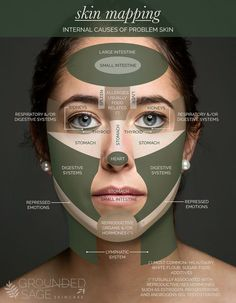 Gesicht Mapping, Skin Mapping, Back Acne Treatment, Overnight Acne Treatment, Cystic Acne Treatment, Acne Breakout, How To Get Rid Of Acne, Tips Belleza, Belleza Natural