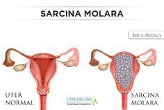Sarcina molara este o complicatie rara a sarcinii.Sarcina molara se datoreaza unei tulburari in timpul procesului de fertilizare si se caracterizeaza prin anomalii ale celulelor care formeaza placenta. http://www.i-medic.ro/boli/sarcina-molara