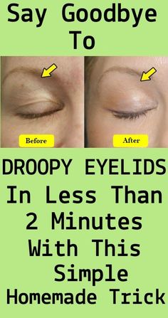 Droopy Eyelids Drooping eyelids are generally the result of ageing. However, many different factors can have an effect on their look. Once they arise, droopy eyelids may additionally stay the ident… Beauty Care, Beauty Skin, Health And Beauty, Beauty 360, Beauty Killer, Star Beauty, Diy Beauty, Beauty Makeup, Skin Care Products