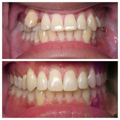 Straight teeth are always in style! Contact us today to set up your Invisalign consultation with Dr. jamie Sands.  #MondayMakeover #Smile #Invisalign  www.drjamiesands.com